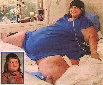 morbid-obesity